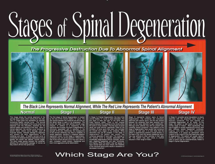 Stages of Spinal Degeneration in Seattle WA